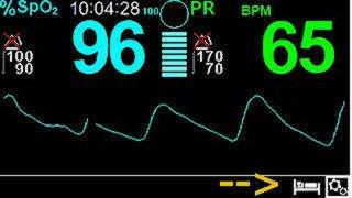 Schlaf-Lern-Modus Covidien PM100N Medtronic