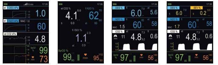 Displayanzeige Multigas Monitor Kapno live