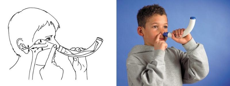 Nasencornet