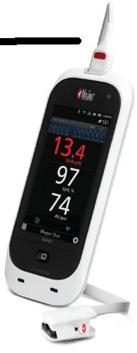 Masimo Pulsoximeter RAD-67 inkl. SpHb und SpCO Messung mit rainbow SUPER DCI-MINI SC 400 Sensor